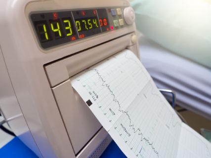cardiotocografia risultati