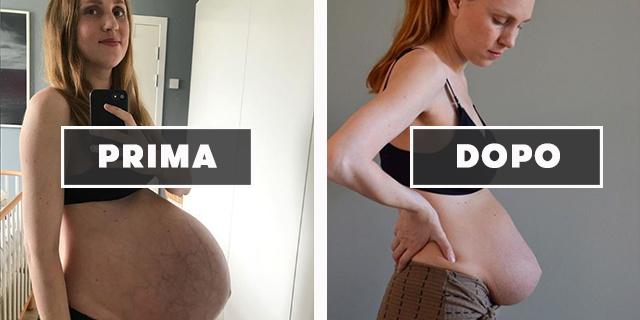 """""""Il mio corpo prima e dopo aver partorito tre gemelli"""""""