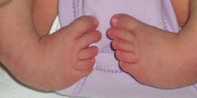 Il piede equino: una malformazione curabile fin dai primi giorni di vita