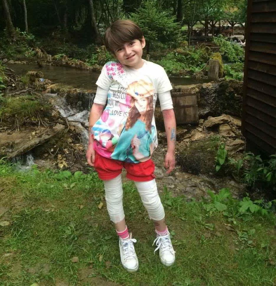 """Sara, la """"bambina-farfalla"""" che scrive libri e sogna di fare la ballerina"""