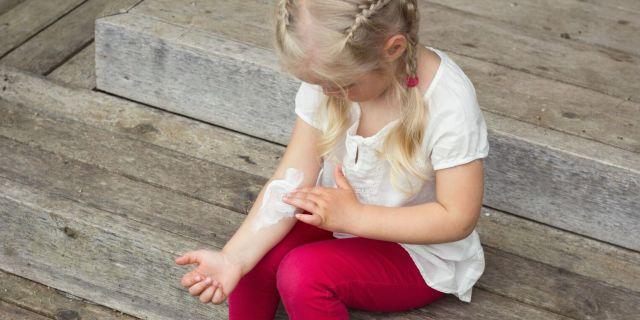 Come trattare l'impetigine, un'infezione molto contagiosa tra i bambini