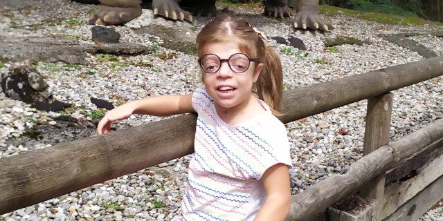 Sindrome di Pfeiffer, la malattia rara di Rebecca che colpisce 1 bimbo su 100 mila