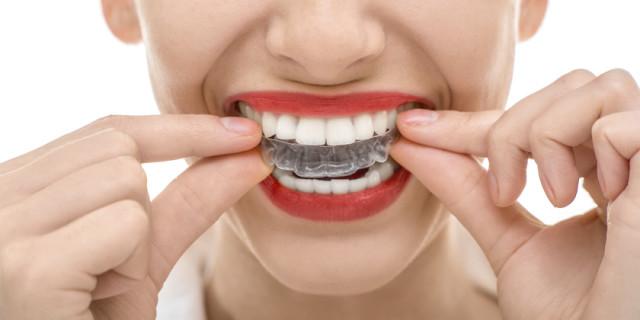 Bruxismo: il bite dentale