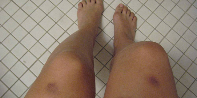 Lividi misteriosi sulle gambe delle donne