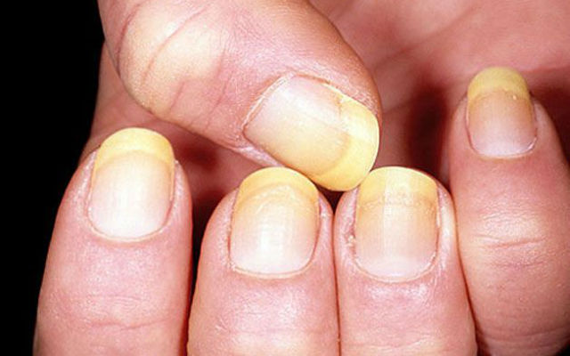 Favori La salute passa attraverso le tue unghie - Roba da Donne SF23