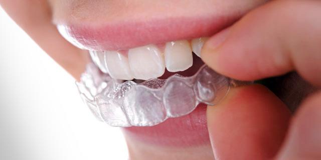 Fonte: Dentista Como