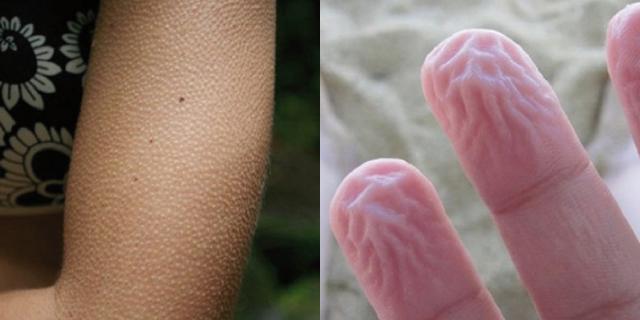 Sai perché ti viene la pelle d'oca e se stai tanto in acqua le tue mani diventano così?