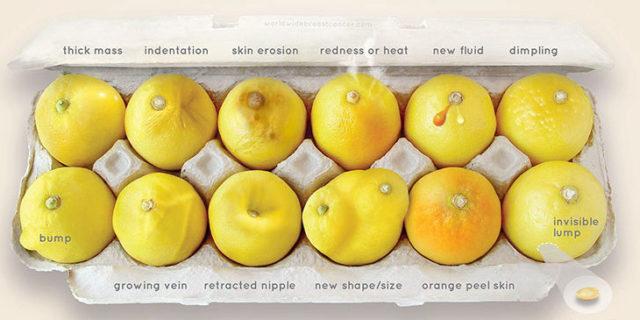 Condividendo queste immagini puoi aiutare una donna a scoprire in tempo il tumore al seno