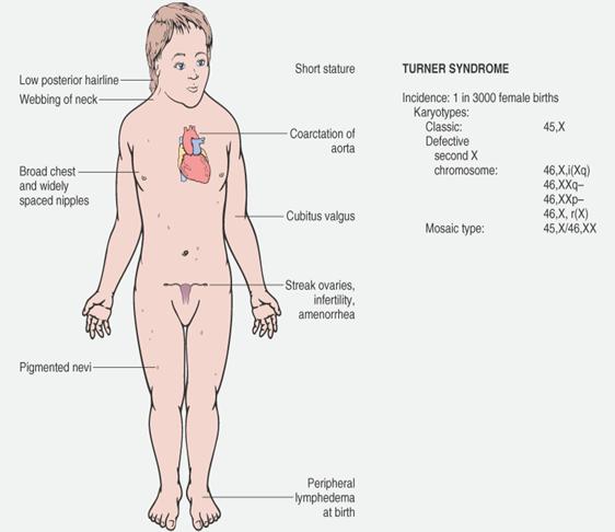 sindrome di Turner sintomi
