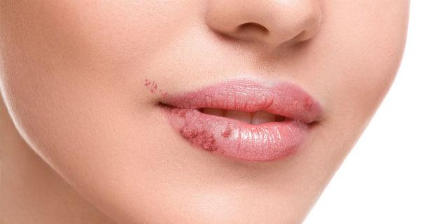 Perché ti è venuto un herpes labiale