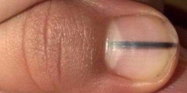 """""""Perché se avete una riga sull'unghia come questa è importante che andiate dal medico"""""""