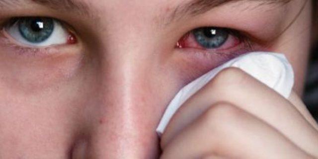 congiuntivite allergica quanto dura