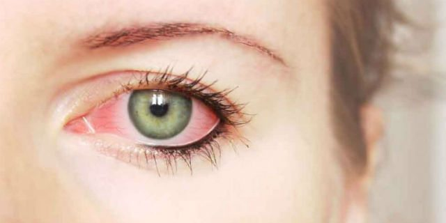 congiuntivite allergica cause