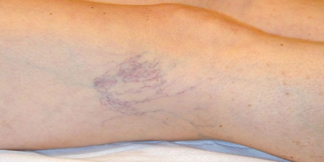 capillari rotti gambe