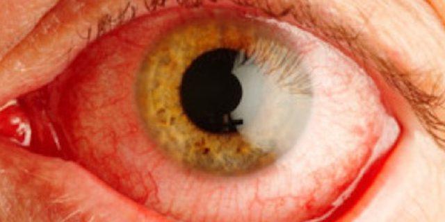 capillari rotti occhi