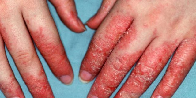 dermatite da stress sintomi