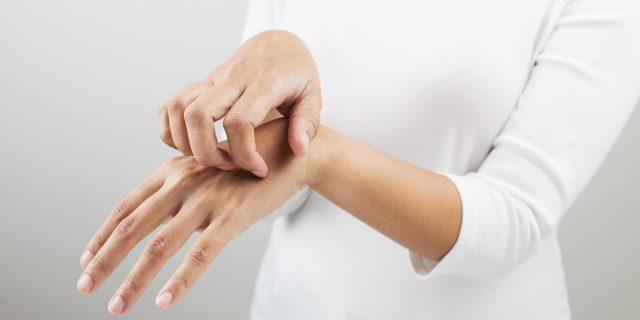 dermatite da stress cure
