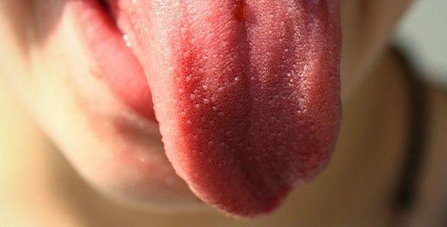bolle sulla lingua cause