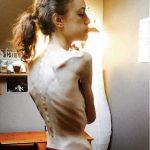 """""""Io, durante e dopo l'anoressia"""": la testimonianza in immagini di Emelle"""