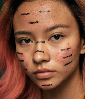 """La battaglia di Cara Delevingne contro Photoshop: """"L'acne è normale"""""""