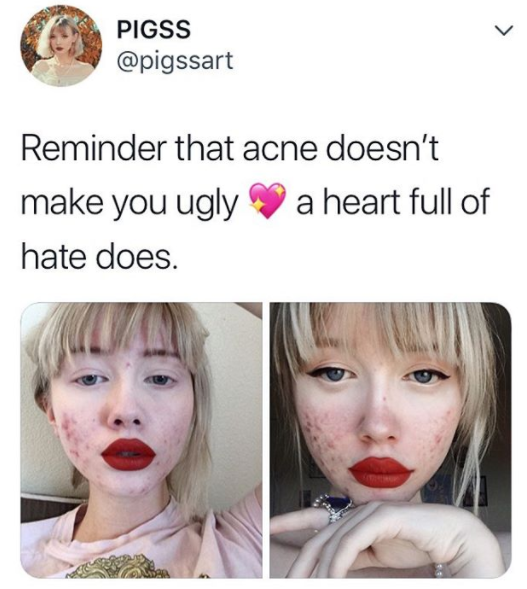 """""""Ero stanca di nascondermi: l'acne non ti rende brutta, un cuore pieno di odio sì"""""""