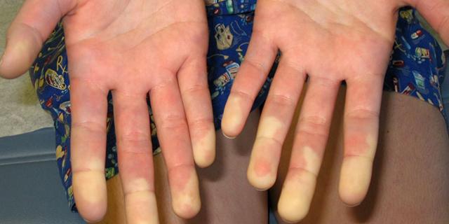 Sindrome di Raynaud, la malattia delle mani bianche di chi non sopporta il freddo