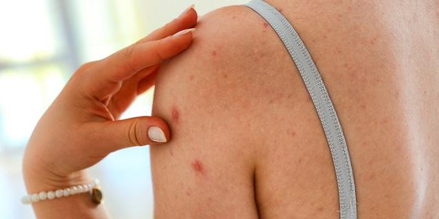 Eczema: sintomi, cause e cura