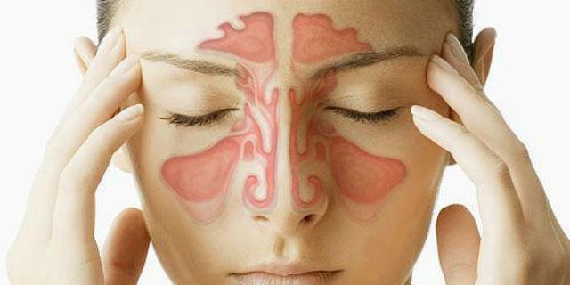 I seni paranasali colpiti dalla sinusite mascellare