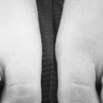 """Sindattilia: """"Sono nata con le dita attaccate e ne ho fatto la mia unicità"""""""