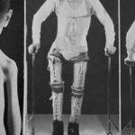 """""""Oggi la polio non è più la polio"""": un medico spiega perché il vaccino è indispensabile"""