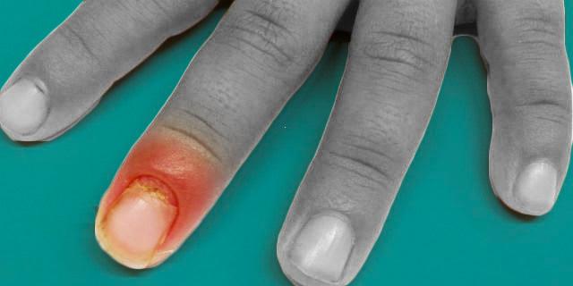 Perionissi, quando la manicure diventa pericolosa