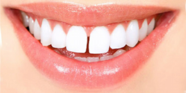 Tutto ciò che c'è da sapere sul diastema, l'intervallo tra i denti di moda anche tra le star
