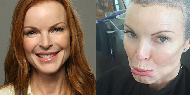 """Marcia Cross racconta il tumore: """"Viva anche se sono caduti i capelli"""""""