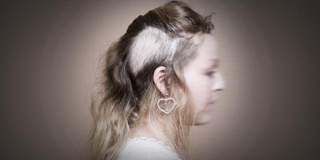 Tricotillomania, quando strapparsi i capelli fino alla calvizie è una necessità