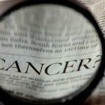 Teratoma: cause, sintomi e cura