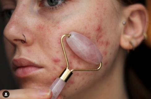"""""""L'acne non ci impedisce di essere belle""""... o influencer come Louisa Northcote"""
