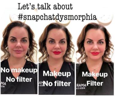 Cos'è la Snapchat dismorfia: la filtri mania che sta arricchendo la chirurgia estetica