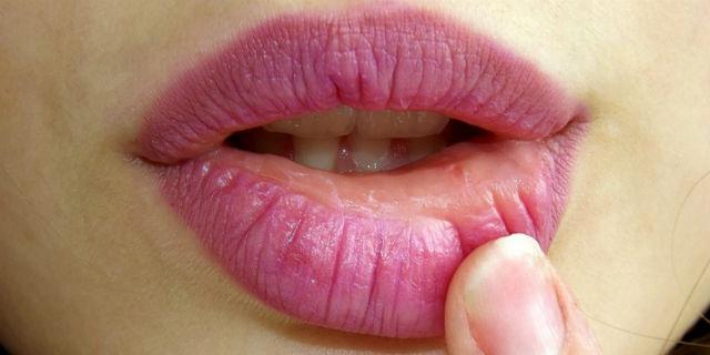 Labbro gonfio: cause, fattori scatenanti e rimedi