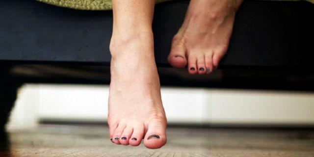 geloni ai piedi