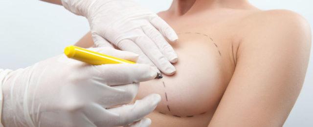 24 cose che è bene sapere prima di scegliere di rifarsi il seno