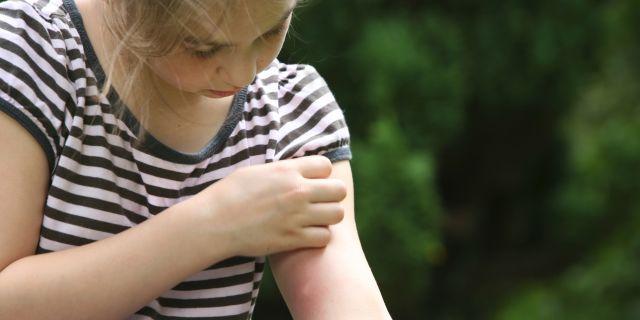 Citronella e non solo: 4 efficaci rimedi contro le zanzare