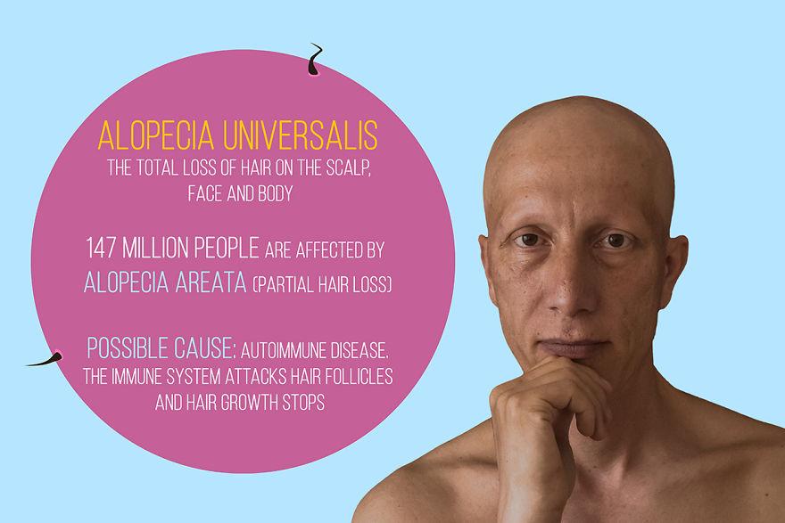 """""""Non vergognarti più"""": 22 vantaggi e svantaggi di soffrire di alopecia"""