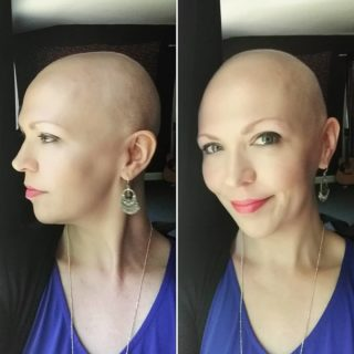"""""""Questo è il cancro al seno: ve lo mostro senza nascondervi nulla"""""""