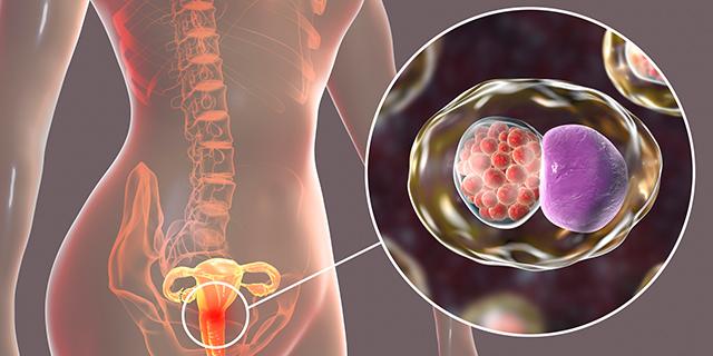 Clamidia, quella malattia a trasmissione sessuale che colpisce soprattutto le donne