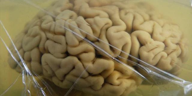 Brenda Milner: cosa ci insegna il cervello di H.M. conservato nella formaldeide