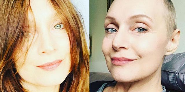 """""""Meno capelli, occhi più sorridenti"""": il cancro raccontato da Sabrina Paravicini"""