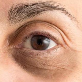 """Cosa ci dice la """"lettura del viso"""" sul nostro stato di salute"""
