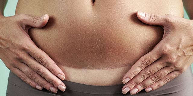 Asportazione utero: quando l'isterectomia è una scelta e quando no