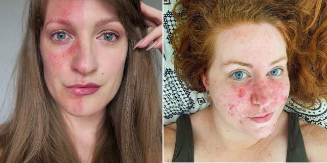 "Rosacea senza filtri: cos'è, 7 storie e perché non è una generica ""dermatite"""