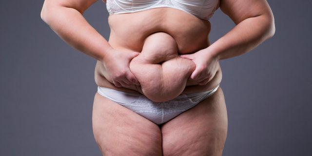 Chirurgia bariatrica: quando l'obesità è un fatto di intervento o morte